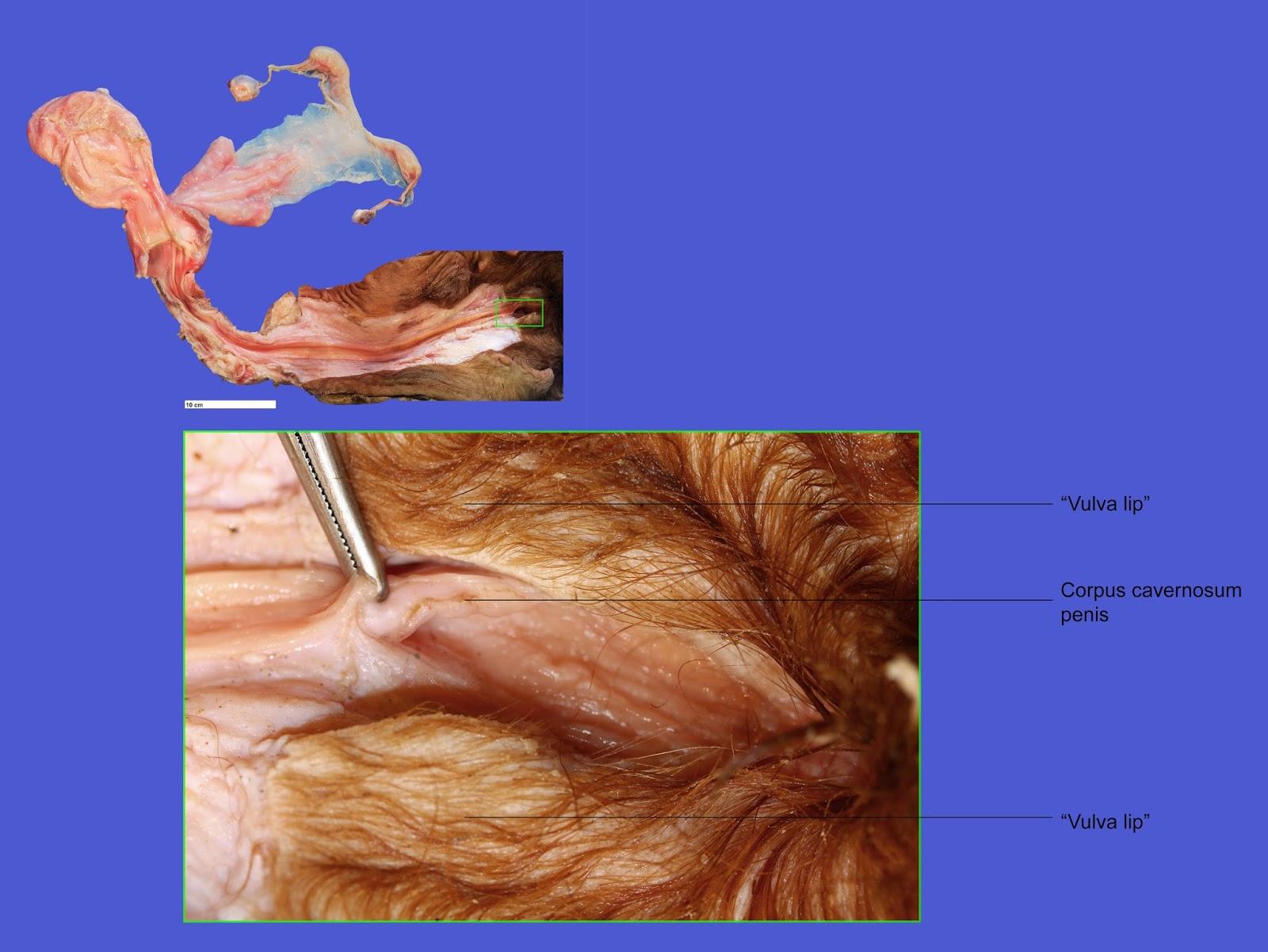 Intersex Anatomy 52500 | LOADTVE