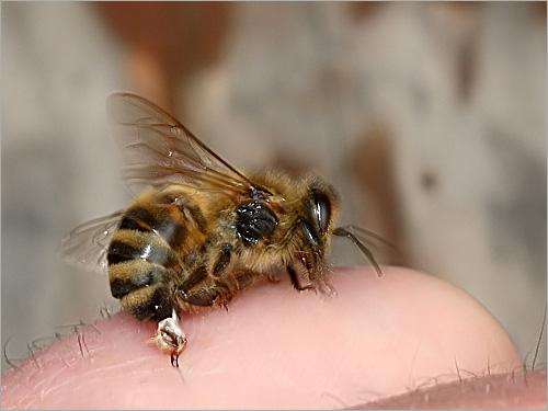التفاعل الجهازى لسم النحل