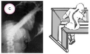 Kelainan+tulan+skoliosis Gangguan pada Sistem Gerak