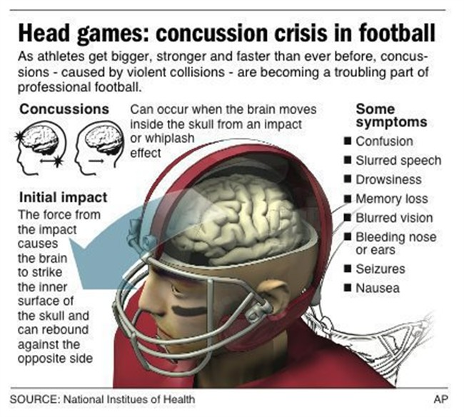 effects of cte in nfl players essay Concussions in the nfl essay:: 11 cte is the main long-term concern linked many former players are experiencing the effects of taking hard hits over.