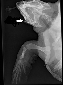 Fractures Disloacted jaw facial and multiple