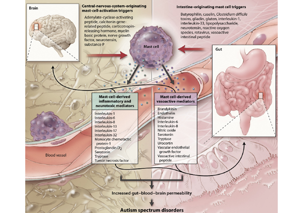 Brain Inflammation2