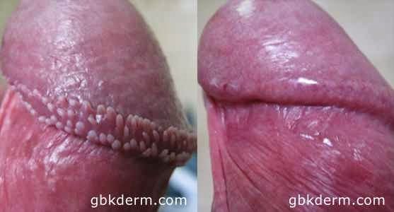 How Long Do Penile Papules Last