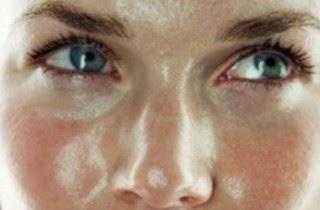 Cuidados de la piel grasa