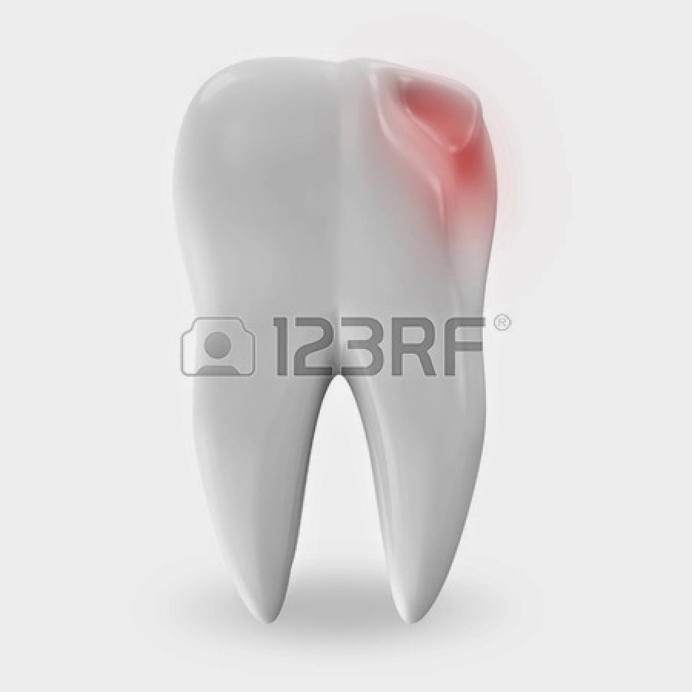 cara mengobati sakit gigi dan gigi berlubang