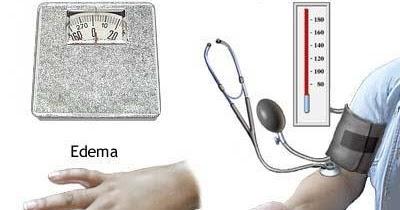Nursing Care Plans for PreeclampsiaEclampsia Pregnancy