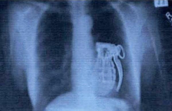 Curiosas y raras radiografías