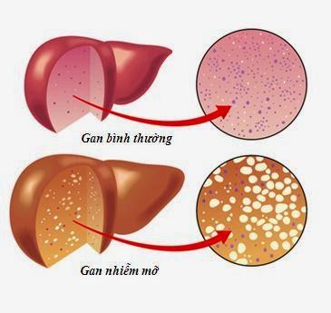 gan nhiem mo-thuốc nam chữa trị bệnh gan nhiễm mỡ hiệu quả