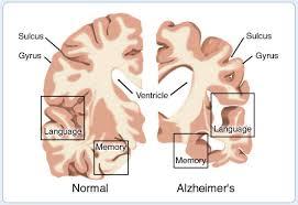 obat herbal penyakit alzheimer