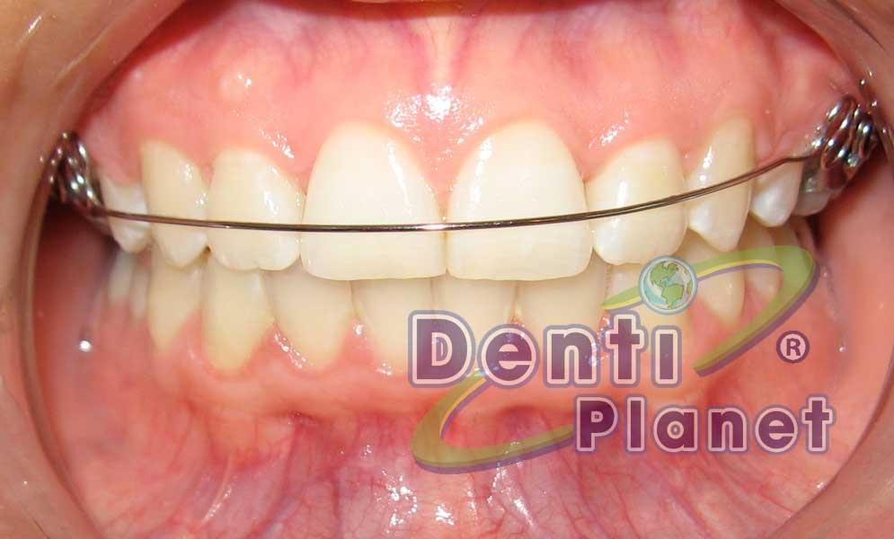 Blog ortodoncia dentiplanet llego el momento de quitarme for W de porter ortodoncia