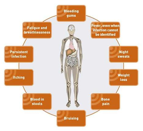 Health And Beauty Tips: April 2012 Acute Lymphoblastic Leukemia Symptoms