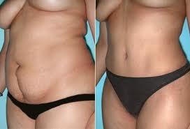 Abdominoplastia Fotos Antes e Depois