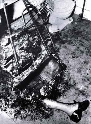 Spontaneous Human Combustion photo example