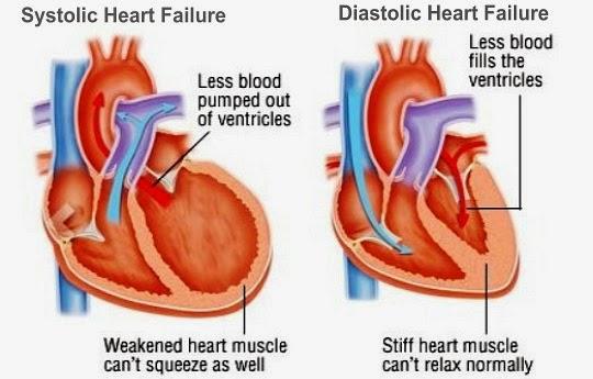 Systolic And Diastolic Heart Failure
