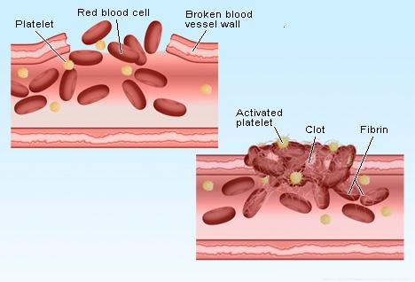 how to build platelets after radiation