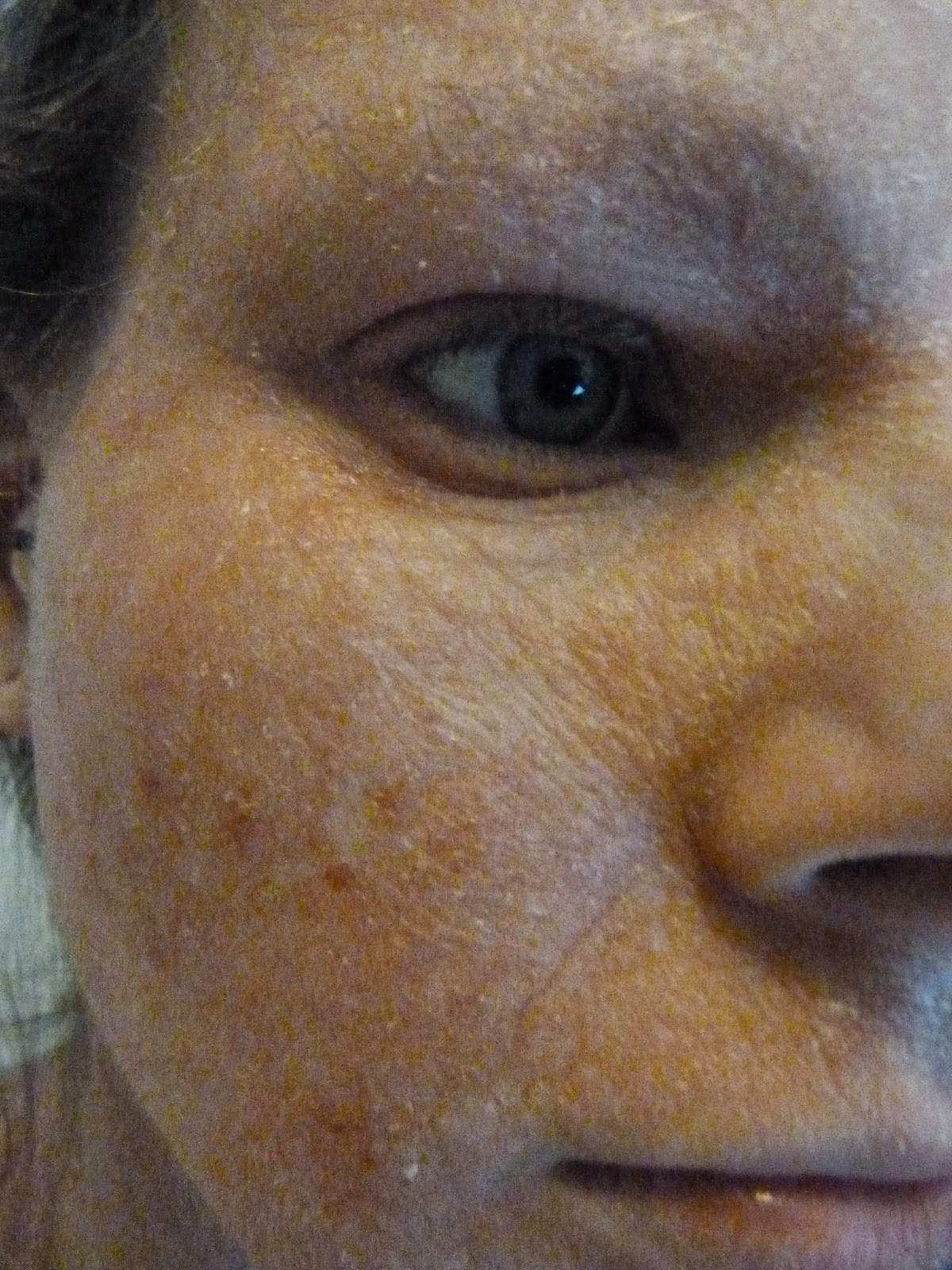 post-topical steroid hypopigmentation