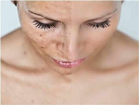 Los procedimientos las manchas de pigmento que quitan