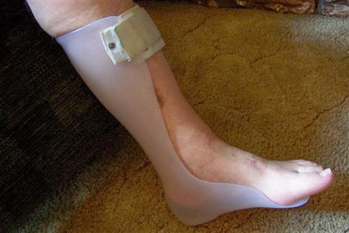 Foot Neurontin Neuropathy