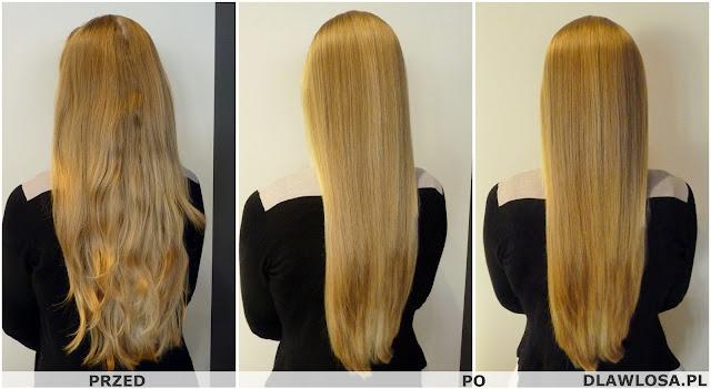 Piękne włosy - zdrowe włosy - trycholog warszawa