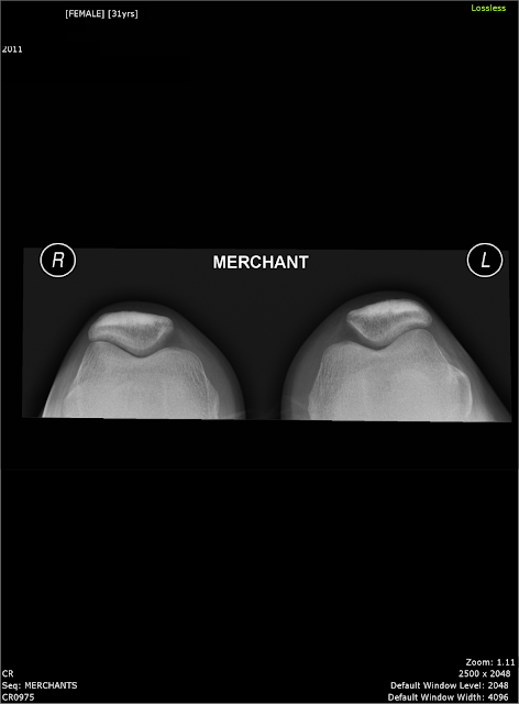 Merchant view of the knee joint x ray medical imaging technology merchant view of the knee joint x ray ccuart Images