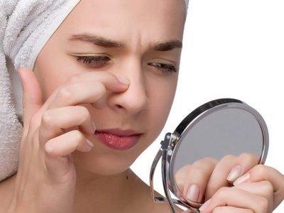 Hilangkan Bintik Hitam Dengan Ubat Gigi Dan Garam