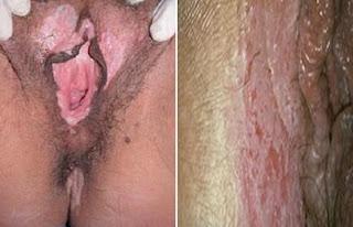 comezón o picor en la vulva