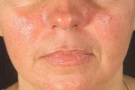 Penyebab Penyakit Lupus - Etiologi