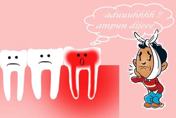 Cara Mengobati Sakit Gigi Secara Alami ~ Berbagi Itu Indah