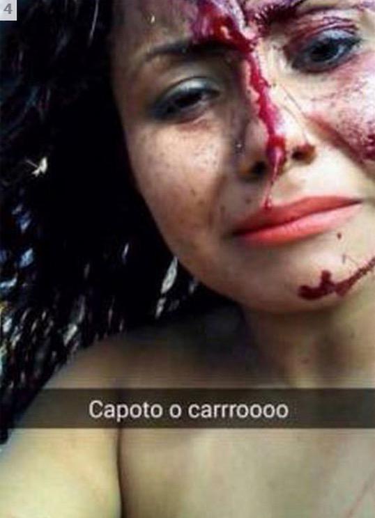 Gambar Selfie Wanita Sebelum dan Selepas Kemalangan Ngeri