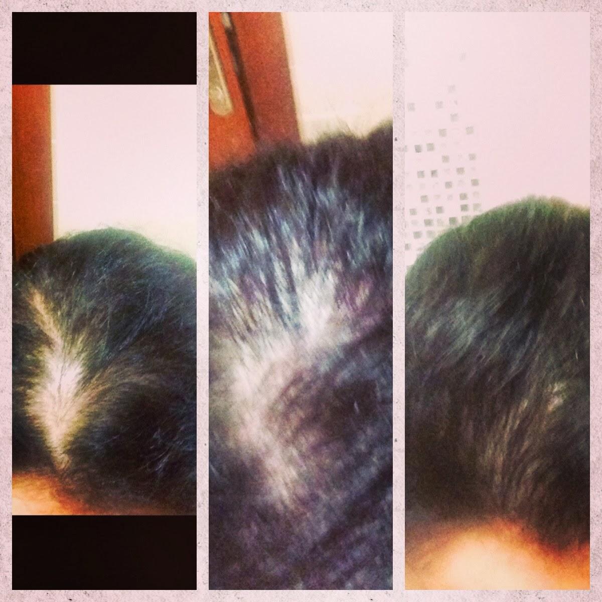 Saç Gürleştirme