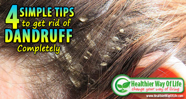 4 Simple Tips to Get Rid of Dandruff Completely