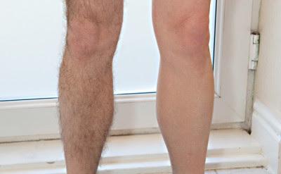 Cara menghilangkan bulu kaki secara permanen