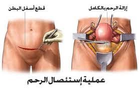 استئصال الرحم.. وتأثيره على النشاط الجنسي
