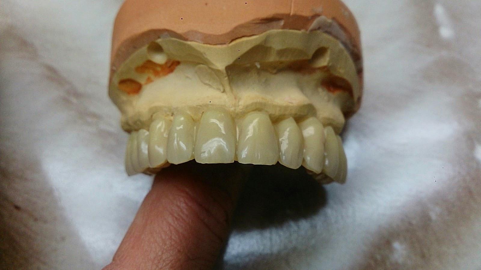 blog prothesiste dentaire Cette association a été créer pour la reconnaissance de l'agénésie dentaire mais depuis que ça été nomenclaturer au sein de la sécurité sociale, je penses que celle-ci a diminué son activité ou alors elle l'a arrêté son site est super, avec des liens.