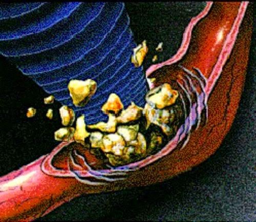 Ketahui Cara Mengobati Penyakit Ginjal dengan Alami