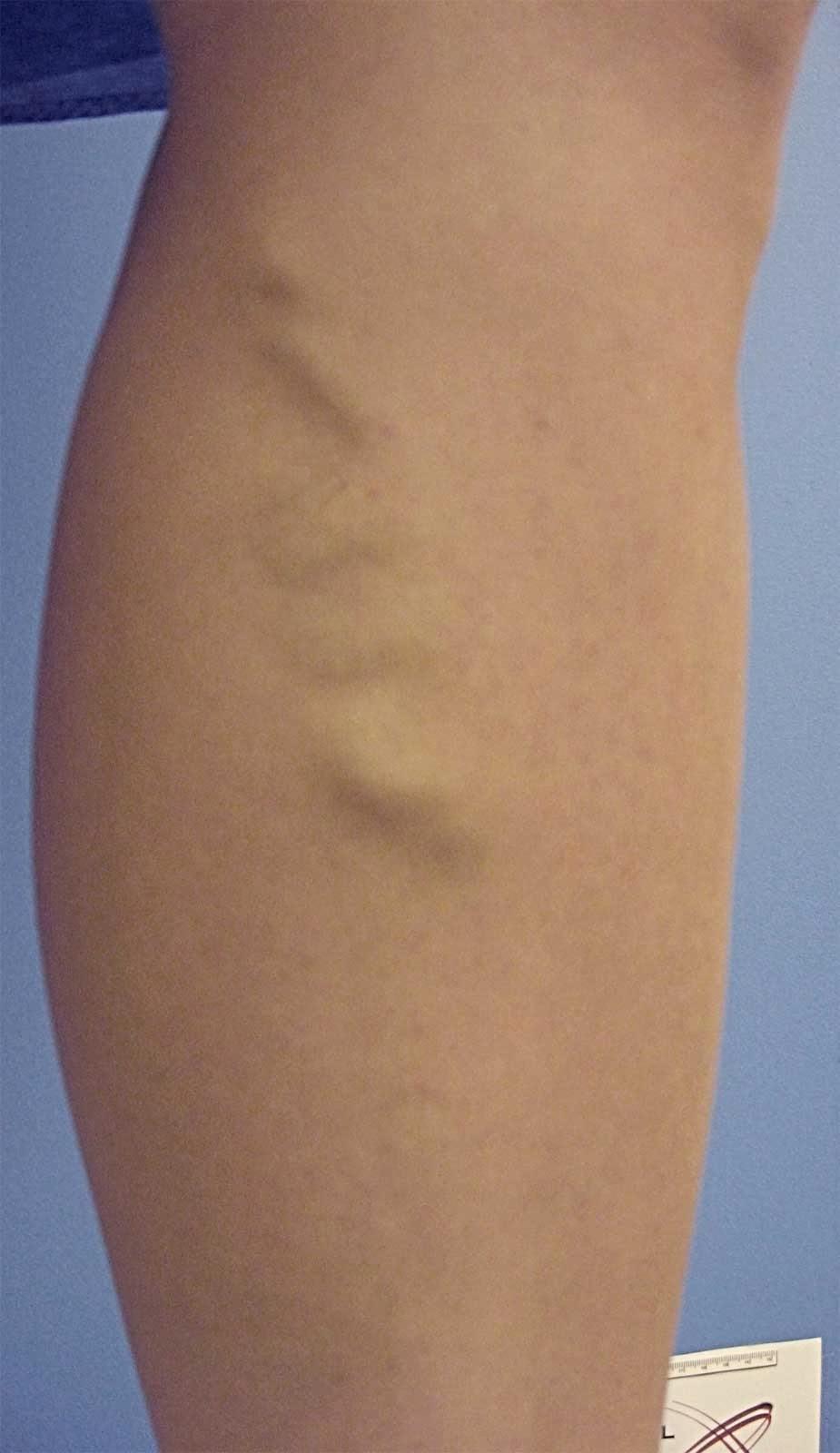 Il modo dopo rimozione di una vena di una gamba
