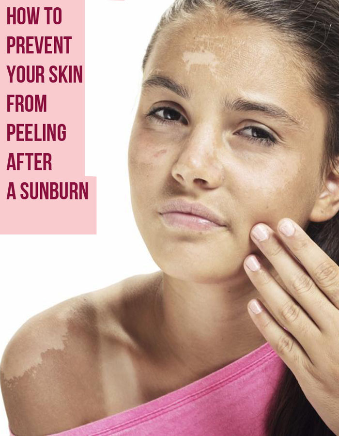 How to Prevent Your Skin From Peeling After a Sunburn