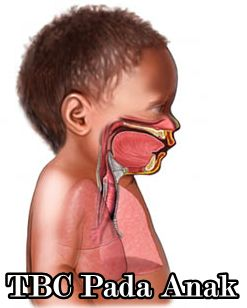 http://obattbc-1.blogspot.com/2015/07/pengobatan-tbc-paru-untuk-anak-segala-usia.html