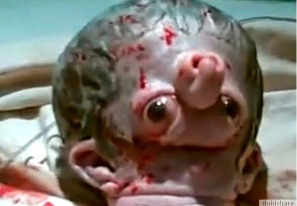 Bayi Lahir Dengan Rupa Yang Aneh Di Mesir
