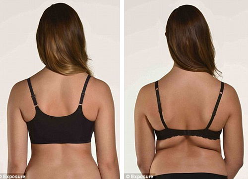 grasa espalda