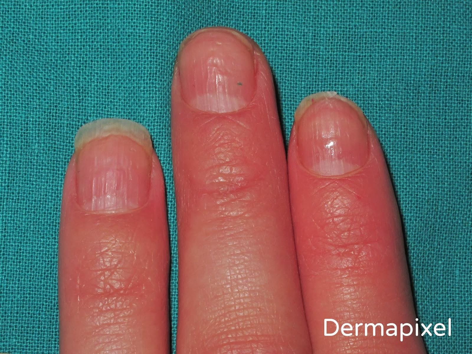 Dermapixel: Psoriasis ungueal: no todo son hongos