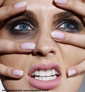 Soluções para olheiras | Clínica Weiss | Hugo Weiss Dermatologista