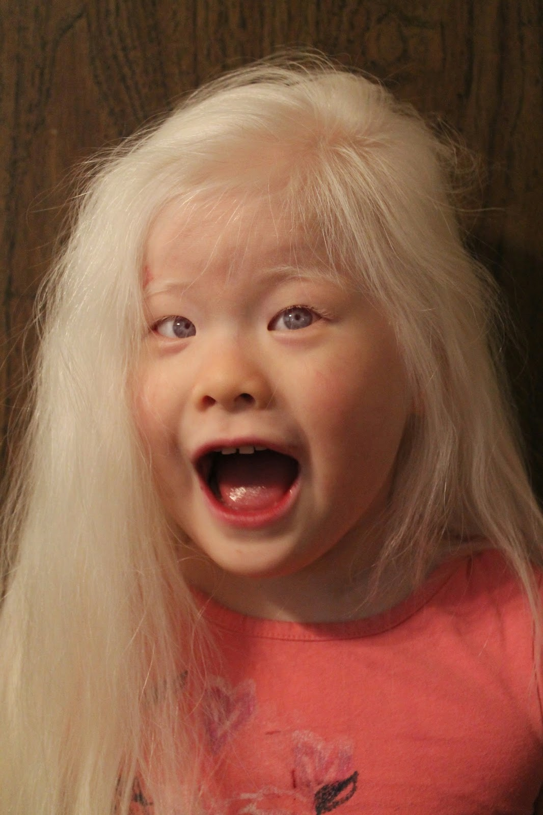 Albino Asian Pictures To Pin On Pinterest Pinsdaddy