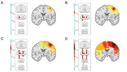 Figure 11. Cortical Degeneration Progression