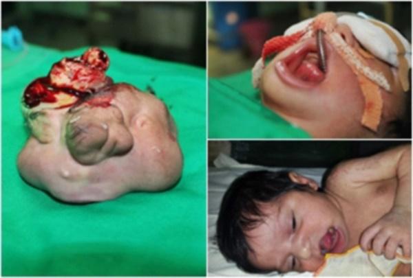 GEMPAR! Bayi Lahir Punyai Janin Kembar Dalam Mulut