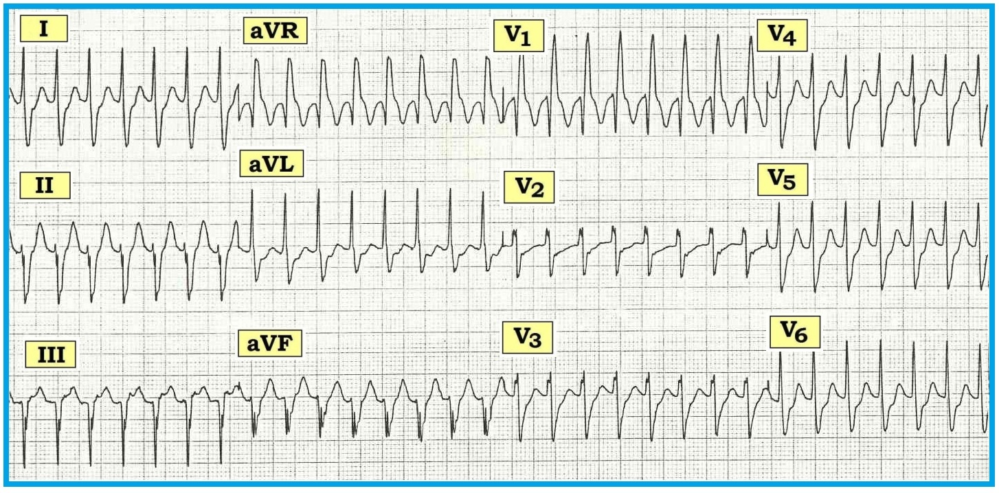 Ecg Interpretation Review 38 Wct Svt Vt Posted By Srihari Rao On Thursday January 6 2011 5comments Figure 1 12 Lead From A 40 Year Old Man With Palpitations Is This Tachycardia Likely To Be Supraventricular Rbbb Aberration