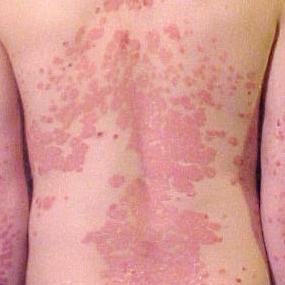 Eczema, Tolalarci, Skin alarci