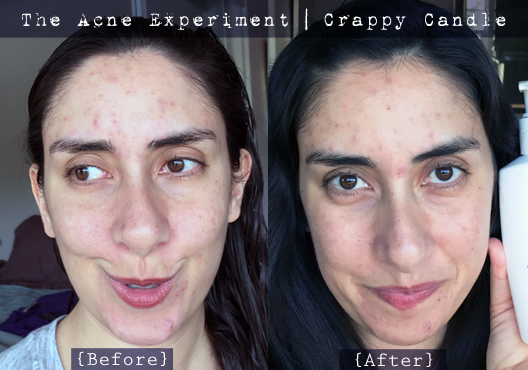 Neutrogena Extra Gentle Cleanser Before & After :: The Acne Experiment