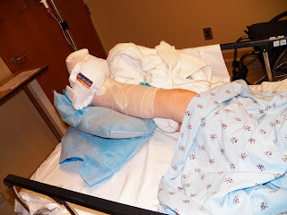 foot surgery, cast, post op picture