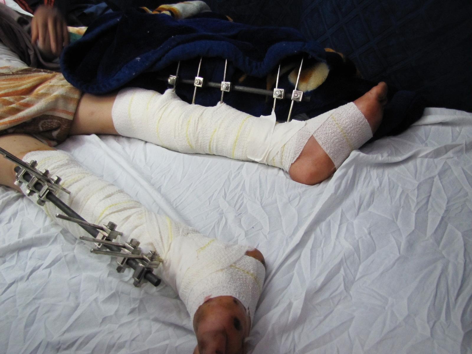 I feriti degli ultimi attacchi israeliani su gaza visita allo shifa hospital bocchescucite - Dolore alle gambe a letto ...